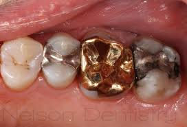 dental onlay gold onlays in missoula mt smile gallery before afters