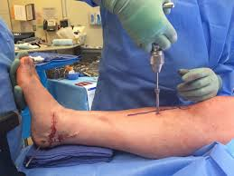 external fixator ankle spanning external fixation delta frame orthoconsult
