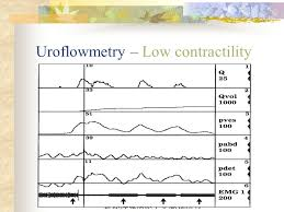 Urodynamic Study In Lower Urinary Tract Dysfunction Ppt Video