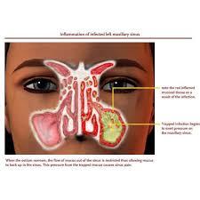 Medical Mythbusters – Green Snot! | BuckMD Blog