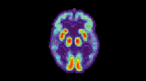 Artificial Intelligence Can Detect Alzheimer's Disease in Brain Scans Six  Years Before a Diagnosis | UC San Francisco