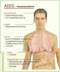 hiv erste symptome wann