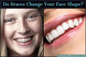 do braces change your face shape
