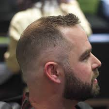 Male Pattern Baldness Haircuts Mesmerizing Haircuts For Balding Men