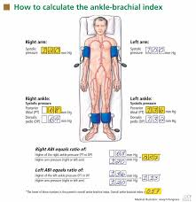 Using The Ankle Brachial Index To Diagnose Peripheral Artery