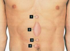 Small bulge above belly button