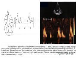 Презентация на тему ЭХО КГ Выполнил студент курса Корольков А  34 2 Непрерывное доплеровское исследование cw Используется для регистрации высокоскоростного кровотока Используется для регистрации высокоскоростного