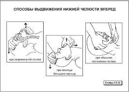 Этапы сердечно легочной реанимации Студопедия У пострадавших находящихся в бессознательном состоянии можно осуществить выдвижение нижней челюсти вперед более эффективно введенным в рот большим пальцем