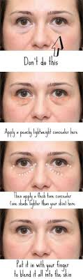 3920 best Puffy Eyes images on Pinterest in 2018   Beauty tips ...