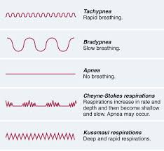 Abnormal Breathing Patterns Fascinating Assisting With Oxygen Needs Nurse Key