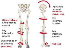 Flat Footed How To Fix Flat Feet Pes Planus Posture Direct