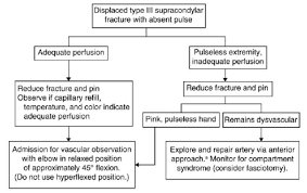 Circulation Chart For Fracture Supracondylar Fracture Pediatric Pediatrics Orthobullets