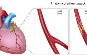 Te laag cholesterol klachten