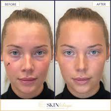 eye hollows correction photo 1