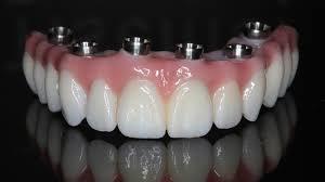 Protocolo de Implante, Especialista em Protocolo de Implante, Prótese Protocolo, Especialista em Prótese Protocolo, Implantes Dentários Zona Sul SP, Implantes Dentais Zona Sul SP, Protocolo de Implante Zona Sul SP, Especialista em Protocolo de Implante Zona Sul SP, Prótese Protocolo Zona Sul SP, Especialista em Prótese Protocolo Zona Sul SP,