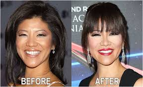 julie chen s before after image of eye nose and plastic surgery