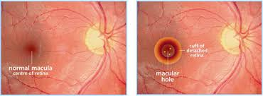 Macular Hole | Retina Vitreous Resource Center