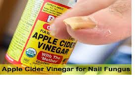 using apple cider vinegar for nails