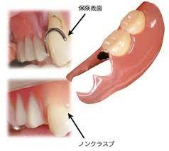 部分 入れ歯 奥歯 2 本 値段