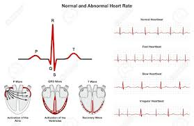 Normal And Abnormal Heart Rate Infographic Diagram Including