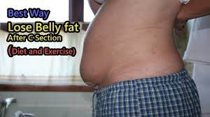 how to lose belly fat after c section