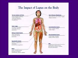 Lupus Chart Invisible Illness Multiple Sclerosis Health