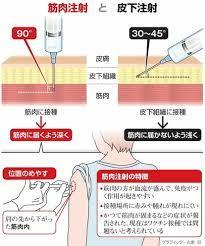 インフルエンザ 筋肉 注射