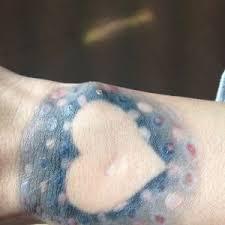 Cena Odstranění Tetování Brno A Okolí Laserové Odstranění Tetování