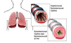 Аллергическая бронхиальная астма симптомы и лечение аллергическая бронхиальная астма симптомы лечение