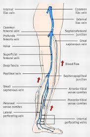 Leg Vein Chart Diagram Showing The Venous Anatomy Of The Leg