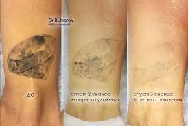 где как и с помощью чего можно удалить татуировку страница 2