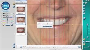 Gps Smile Design Gps Presents The 3d Smile Designer Youtube