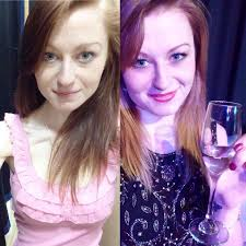 anorexic face before after. Unique Face Nicola Davis Intended Anorexic Face Before After S