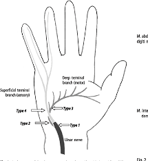 handlebar palsy a pression syndrome of the deep terminal motor branch of the ulnar nerve in biking semantic scholar
