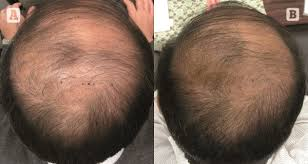 prp acell hair restoration pletely non surgical above photos are after one treatment