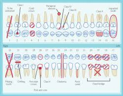 Manual Charting In Dentistry Dental Chart Forms Sada Margarethaydon Com