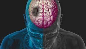 سالم خبر - سکته مغزی تا سه ساعت قابل درمان است