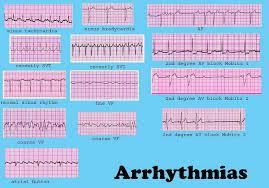 49 Inquisitive Ekg Arrhythmia Chart