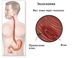 Анализ причин осложнений язвенной болезни желудка и  Для пациентов с