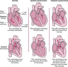 Left Vs Right Heart Failure Chart What Is Hf American Association Of Heart Failure Nurses