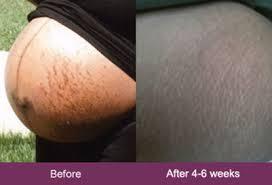 Mederma Before And After Mederma Before And After