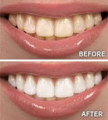 Teeth Setting Teeth Whitening Sumter Sc Wesmark Family Dentistry