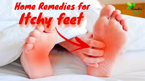 Home Remedies for itchy feet | how to cure itchy feet at night - YouTube