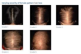 Female Pattern Hair Loss Magnificent FEMALE PATTERN HAIR LOSS MyNLrx