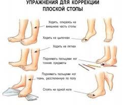 ПСИХОЛОГИЧЕСКАЯ КОРРЕКЦИЯ это что такое ПСИХОЛОГИЧЕСКАЯ КОРРЕКЦИЯ  Упражнения для коррекции плоской стопы