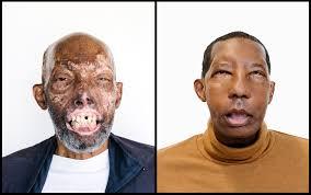 Dr Robert Light Meet The First African American Face Transplant Recipient Time