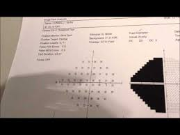 Visual Field Chart Interpretation Interpreting Visual Fields Youtube