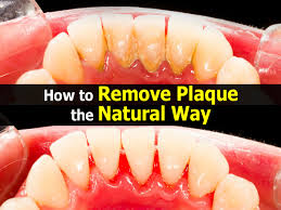 cleaning plaque off teeth onvacations wallpaper