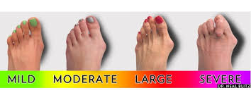 Flat Footed Cure Flat Feet For Better Posture You Kando It