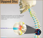 best pain relief for slipped disc